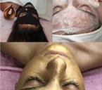 טיפולי פנים במעלה אדומים