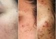 טיפול באקנה לפני ואחרי